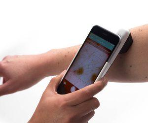 DermLite HUD Smart Skin Scanner